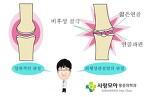 무릎 퇴행성 관절염 - 대구 사랑모아통증의학과 -