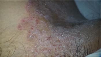 습진 치료(사타구니 습진) 침치료 사진과 영상입니다.(by 미세현미경)