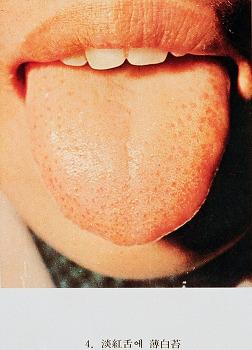 CBS한방으로 풀어보는 건강법; 혀의 병과 진단법에 대하여(15.01,13 방송분)