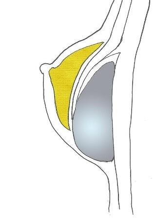 [가슴성형재수술]보형물의 하방변위 교정