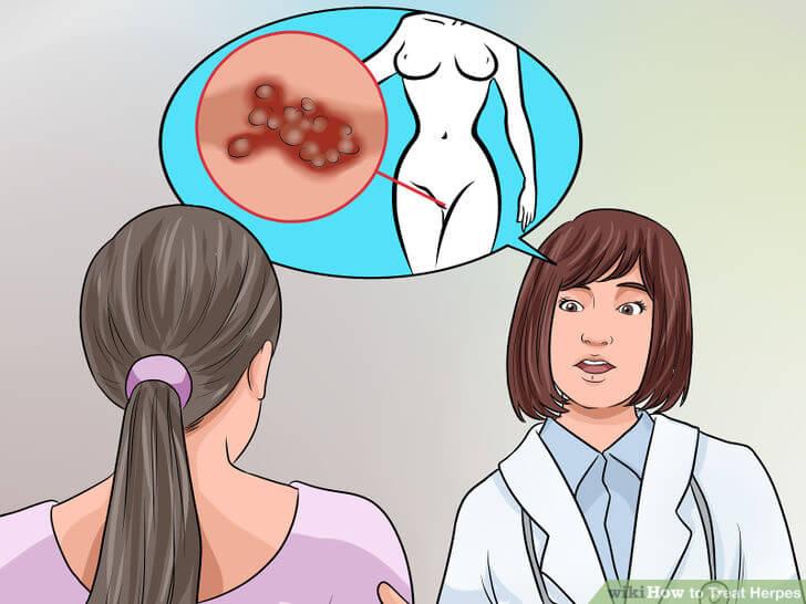 herpes women