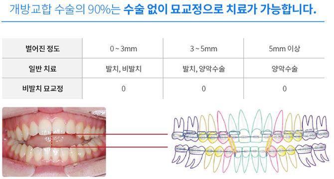 턱관절안면비대치치료