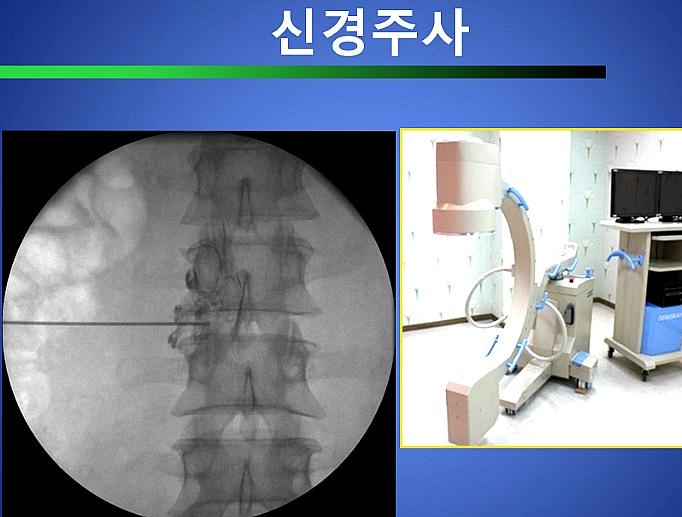척추관 협착증 치료방법 신경주사