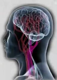 손상부위에 따른 뇌졸중 증상