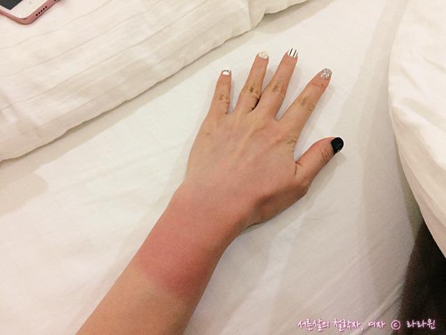 스쿠버타이빙 팔