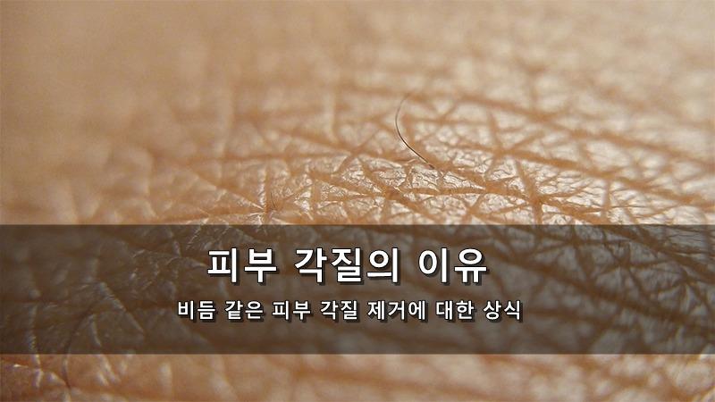 피부 각질이 생기는 이유 - 비듬 같은 피부 각질 제거에 대한 상식